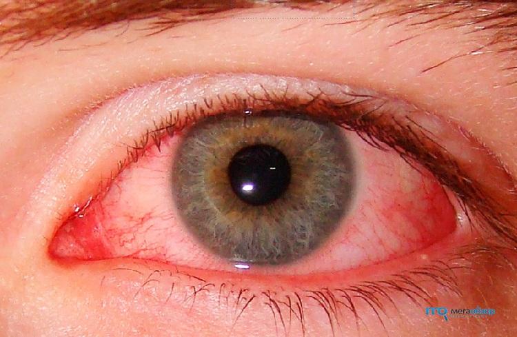 Как сделать глаза опухшими и красными