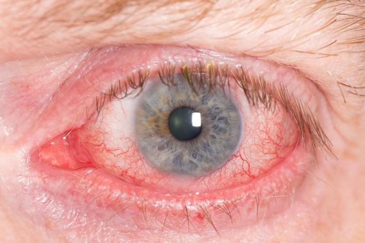 В домашних условиях лечить покраснение глаза 286