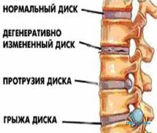 Как лечить грыжу и протрузию в поясничном отделе